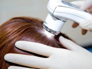 Лечение и компьютерная диагностика волос